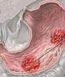 Bệnh viêm dạ dày - ruột cấp tính