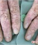 Vảy nến  bệnh khó chữa, dễ tái phát
