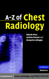 A–Z of Chest Radiology