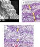 Applications of knitted mesh fabrication techniques to scaffolds for tissue engineering and regenerative medicine