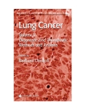 Lung Cancer Edited by Barbara Driscoll Volume II Diagnostic and Therapeutic Methods and Reviews