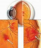 Biến chứng mắt ở bệnh nhân đái tháo đường, nguyên nhân hàng đầu gây mù