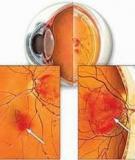 Biến chứng võng mạc mắt ở bệnh nhân đái tháo đường