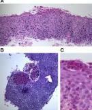 Eosinophilic Esophagitis: an Emerging  Clinicopathologic Disease of Children and Adults