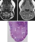 Kikuchi' s Disease in Children: Clinical Manifestations and Imaging Features