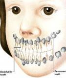 Răng sữa sâu gây nhiều phiền toái cho bé