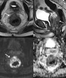 Role of diffusion-weighted imaging in the diagnosis of gynecological diseases