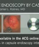 American College of Gastroenterology Guidelines for  Colorectal Cancer Screening 2008