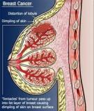 New Malignancies Following Breast Cancer