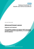 Advanced breast cancer:   This guideline updates and replaces NICE technology  appraisal guidance 62 (capecitabine), 54 (vinorelbine)  and 30 (taxanes)