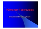 Pulmonary Tuberculosis - Evolution and Clinical picture
