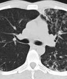 Detection of Pulmonary tuberculosis: comparing MR imaging with HRCT