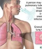 PULMONARY TUBERCULOSIS AND ITS MANAGEMENT IN CLASSICAL UNANI LITERATURE