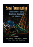 Spinal Reconstruction Clinical Examples of Applied Basic Science, Biomechanics and Engineering