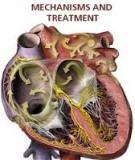 ATRIAL FIBRILLATION - MECHANISMS AND TREATMENT