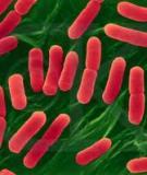 Đặc tính sinh lý và sinh hoá của vi khuẩn gây bệnh hại thực vật