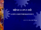 Bệnh Lupus đỏ - Lupus Erythematosus