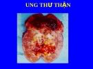 Bài giảng: Ung thư thận