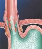 Trào ngược dạ dày - thực quản (GERD) và viêm thực quản