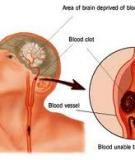 Phòng bệnh xơ vữa động mạch