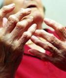 Bài thuốc chữa bệnh phong tê thấp