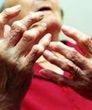 Người viêm khớp dạng thấp nên sinh hoạt thế nào?