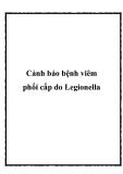 Cảnh báo bệnh viêm phổi cấp do Legionella