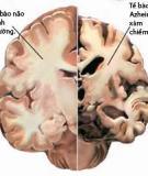 Dấu hiệu suy giảm chức năng thần kinh do lão hóa