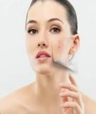 Cách chăm sóc da mụn bằng phương pháp tự nhiên