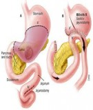 Cách trị bệnh đau dạ dày không dùng thuốc