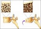 Nguyên nhân và cách phòng ngừa loãng xương