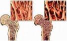 Bệnh loãng xương - Những điều cần biết