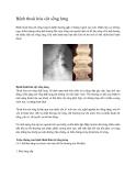 Bệnh thoái hóa cột sống lưng