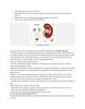 Thuốc và cách chữa bệnh sỏi thận hiệu quả