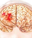 Bài giảng Xuất huyết màng não muộn ở trẻ sơ sinh