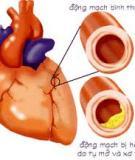 Bài giảng Viêm cơ tim