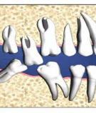 Bài giảng Vận động biên của điểm răng cửa ghi trên mặt phẳng dọc giữa (sơ đồ posselt)