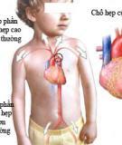 Bệnh hẹp eo động mạch chủ