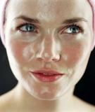 Cách chăm sóc da nhờn trong ngày hè nắng nóng