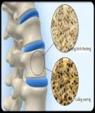 Điều trị loãng xương: Tiếp cận vấn đề qua y học thực chứng - Nguyễn Văn Tuấn