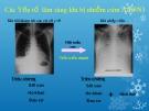 Bài giảng Các Yếu tố lâm sàng khi bị nhiễm cúm A H5N1