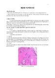 Bài giảng Bệnh tuyến vú