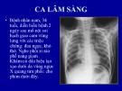 Bài giảng Chuẩn đoán XQ tràn khí khoang lồng ngực