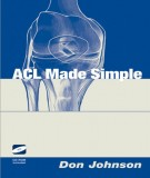 Ebook ACL Made Simple: Part 1
