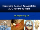 Hamstring Tendon Autograft for ACL Reconstruction