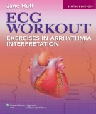 Ebook ECG workout-Exercises in arrhythmia interpretation (6th edition): Part 2