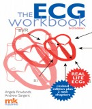 Ebook ECG workbook (3rd edition): Part 2