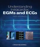 Understanding intracardiac EGMs and ECGs: Part 1