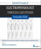 Ebook Essential concepts of electrophysiology through case studies - Intracardiac EGMs: Part 1