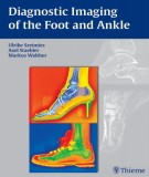 Ebook Diagnostic imaging of the foot and ankle: Part 1